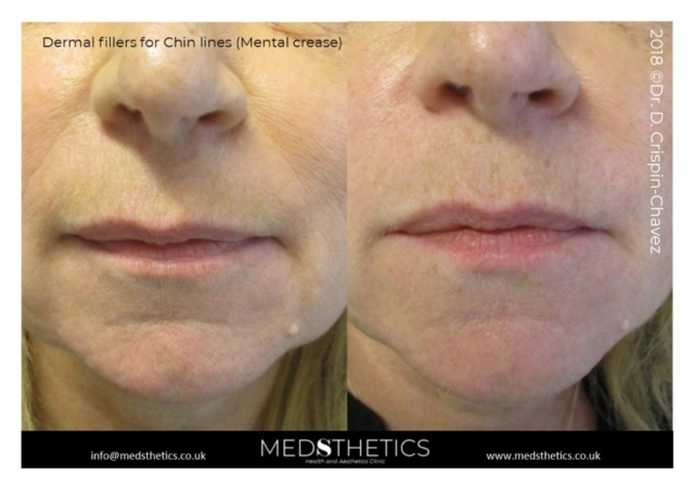 Chin lines and nasolabial folds treated with dermal fillers