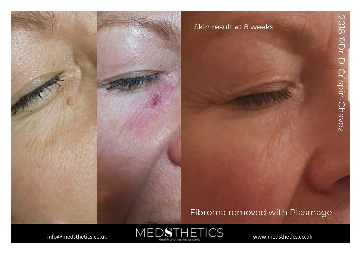 Facial Fibroma removed with PLASMAGE