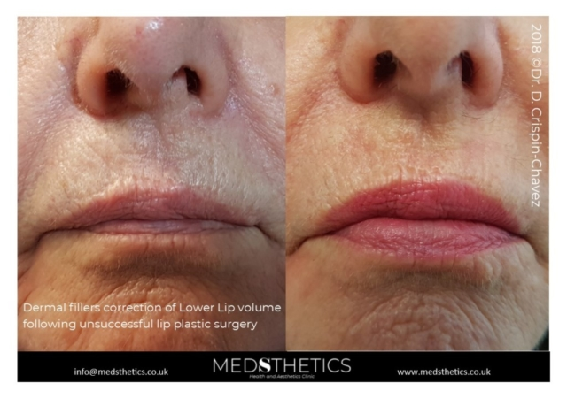 Lower lip correction with dermal fillers