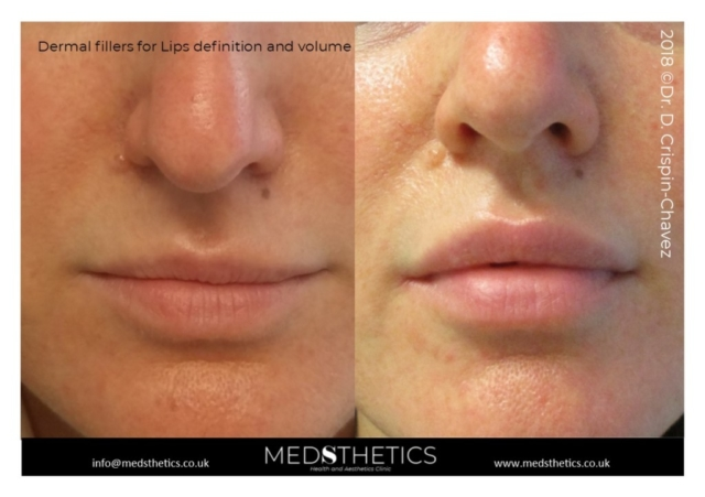 Lips augmentation with dermal fillers