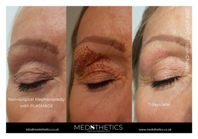 Non-surgical blepharoplasty with PLASMAGE
