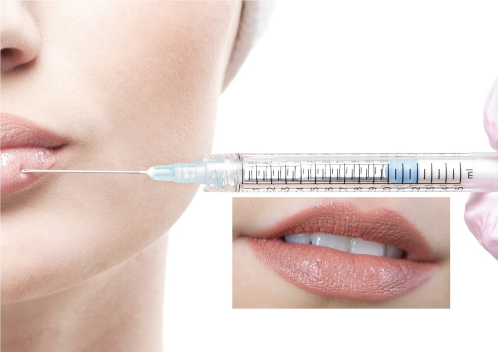Injectables Botox and fillers at Medsthetics