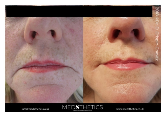 Marionette's lines treated with Fillers