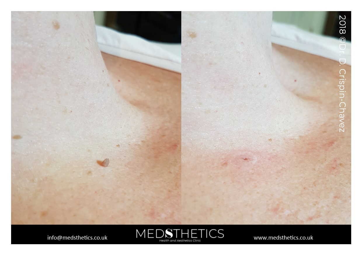 Skin tag removal with cryo
