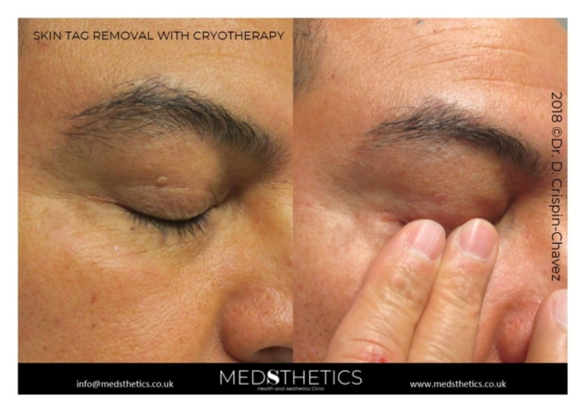 Skin tag removal with cryotherapy